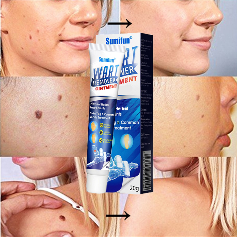 🎁MID-YEAR LIMITIED SALE - 45% OFF--🎁 Instant Blemish Removal Gel